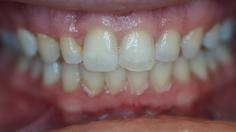 picture of teeth before bonding