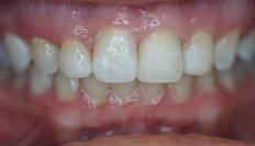 Picture of Teeth after Bonding